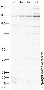 Western blot - Anti-PHF8 antibody (ab36068)
