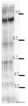 Western blot - Factor H antibody (ab36134)