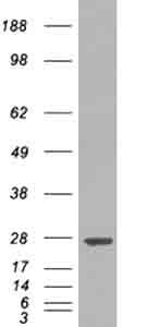 Western blot - GST3 / GST pi antibody (ab36149)