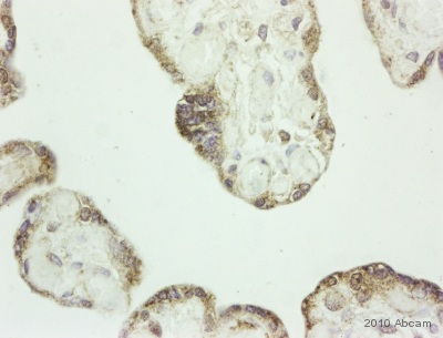 Immunohistochemistry (Formalin/PFA-fixed paraffin-embedded sections) - CXCL14 antibody (ab36622)