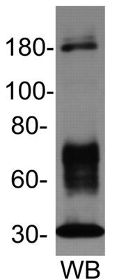 Western blot - Vitellogenin antibody [JE-10D4] (ab36804)