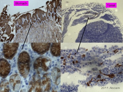 Immunohistochemistry (Formalin/PFA-fixed paraffin-embedded sections) - Cathepsin E antibody (ab36996)