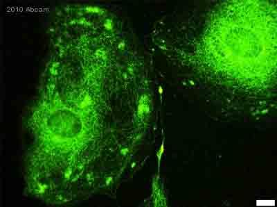 Immunocytochemistry/ Immunofluorescence - MMP2 antibody (ab37150)