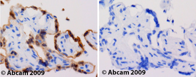 Immunohistochemistry (Formalin/PFA-fixed paraffin-embedded sections)-Tollip antibody(ab37155)