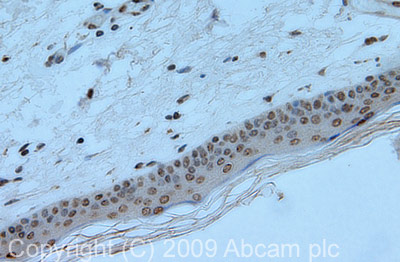 Immunohistochemistry (Formalin/PFA-fixed paraffin-embedded sections) - macroH2A.1 antibody (ab37264)