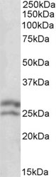 Western blot - Anti-Bcl-2 antibody (ab37899)