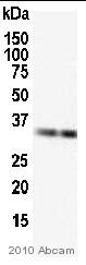 Western blot - SULT2A1 antibody (ab38416)