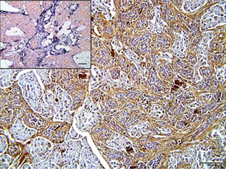 Immunohistochemistry (Formalin/PFA-fixed paraffin-embedded sections) - Anti-MMP9 antibody - Whole molecule (ab38898)
