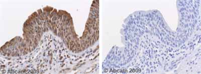 Immunohistochemistry (Formalin/PFA-fixed paraffin-embedded sections) - MMP10 antibody - Hinge region (ab38930)