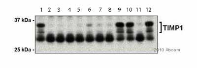 Western blot - TIMP1 antibody - Carboxyterminal end (ab38978)