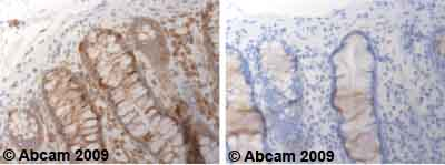 Immunohistochemistry (Formalin/PFA-fixed paraffin-embedded sections)-ADAM17 antibody - Cytoplasmic domain(ab39162)