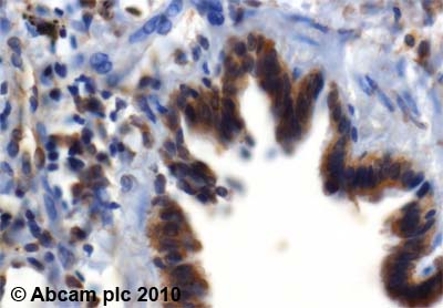 Immunohistochemistry (Formalin/PFA-fixed paraffin-embedded sections) - Calpain 2 antibody - Aminoterminal end domain III (ab39165)