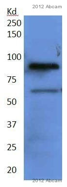 Western blot - Anti-ADAM10 antibody - Prohormone convertase region (ab39180)