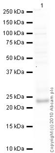 Western blot - TIMP3 antibody - Carboxyterminal end (ab39185)