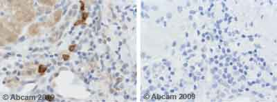 Immunohistochemistry (Formalin/PFA-fixed paraffin-embedded sections) - ADAMTS5 antibody - Carboxyterminal end (ab39202)