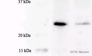 Western blot - MGMT antibody [MT3.1] (ab39253)