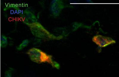 Immunohistochemistry (Frozen sections) - Vimentin antibody (ab39376)