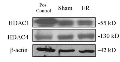 Western blot - HDAC4 (phospho S632) antibody (ab39408)