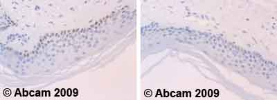 Immunohistochemistry (Formalin/PFA-fixed paraffin-embedded sections)-p73 antibody(ab39424)