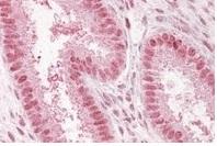 Immunocytochemistry - Anti-NUP50 antibody (ab4005)