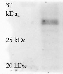 Western blot - MMP7 antibody (ab4044)