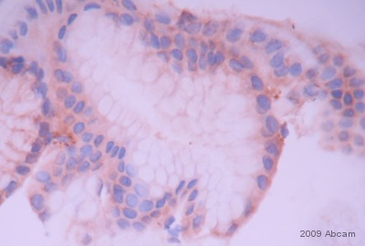 Immunohistochemistry (Formalin/PFA-fixed paraffin-embedded sections) - MMP7 antibody (ab4044)