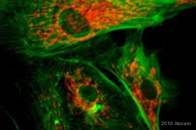 Immunocytochemistry/ Immunofluorescence - MMP7 antibody (ab4044)