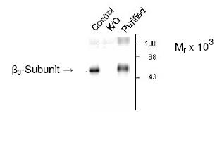 Western blot - Anti-GABA A Receptor beta 3 antibody (ab4046)