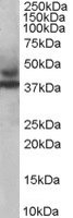 Western blot - MURF3 antibody (ab4351)