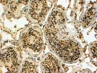 Immunohistochemistry (Formalin/PFA-fixed paraffin-embedded sections) - Anti-EDD antibody (ab4376)