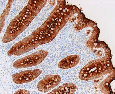 Immunohistochemistry (Formalin/PFA-fixed paraffin-embedded sections) - Anti-Carcino Embryonic Antigen CEA antibody [26/3/13] (ab4451)