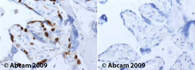 Immunohistochemistry (Formalin/PFA-fixed paraffin-embedded sections)-MCM2 antibody(ab4461)