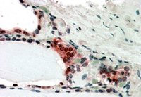 Immunohistochemistry (Formalin/PFA-fixed paraffin-embedded sections) - TRIP15 antibody (ab4537)
