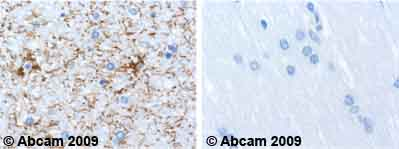 Immunohistochemistry (Formalin/PFA-fixed paraffin-embedded sections) - GFAP antibody [2A5] - Astrocyte Marker (ab4648)