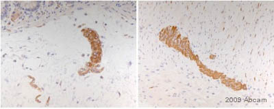 Immunohistochemistry (Formalin/PFA-fixed paraffin-embedded sections) - Peripherin antibody - nociceptive neuron marker (ab4666)