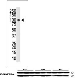 Western blot - Dnmt3a antibody (ab4897)