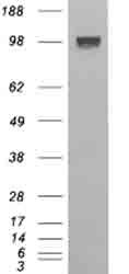 Western blot - ENPP1 antibody (ab40003)