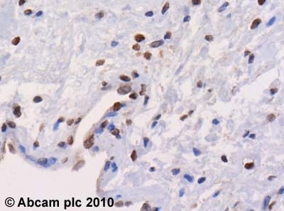 Immunohistochemistry (Formalin/PFA-fixed paraffin-embedded sections) - Anti-EHMT2/ G9A antibody - ChIP Grade (ab40542)