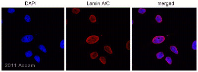 Immunocytochemistry/ Immunofluorescence - Anti-Lamin A + C antibody [JOL2] (ab40567)