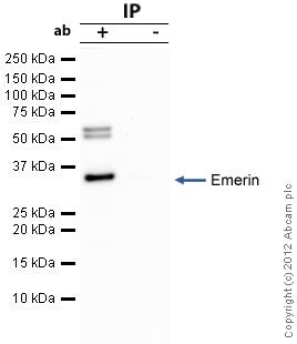 Immunoprecipitation - Anti-Emerin antibody (ab40688)