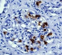 Immunohistochemistry (Formalin/PFA-fixed paraffin-embedded sections) - Anti-Cyclin D1 antibody [EP272Y] (ab40754)