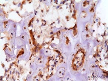 Immunohistochemistry (Formalin/PFA-fixed paraffin-embedded sections) - Anti-Smad4 antibody [EP618Y] (ab40759)