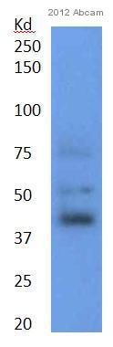 Western blot - Anti-CEBP Alpha antibody [EP708Y] (ab40761)