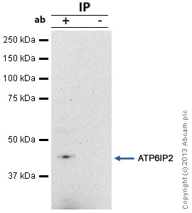 Immunoprecipitation - Anti-ATP6IP2 antibody (ab40790)