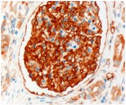 Immunohistochemistry (Formalin/PFA-fixed paraffin-embedded sections) - SLC9A3R2 antibody (ab40825)