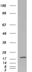 Western blot - RPS19 antibody (ab40833)