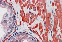 Immunohistochemistry (Formalin/PFA-fixed paraffin-embedded sections) - Anti-VPS37C antibody (ab40851)