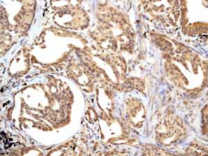 Immunohistochemistry (Formalin/PFA-fixed paraffin-embedded sections)-Anti-Smad3 antibody [EP568Y](ab40854)
