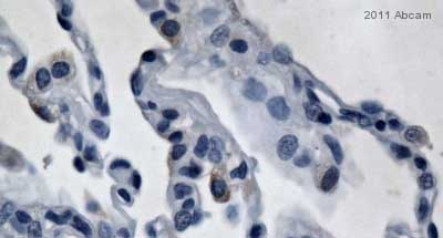 Immunohistochemistry (Formalin/PFA-fixed paraffin-embedded sections) - Uteroglobin antibody (ab40873)