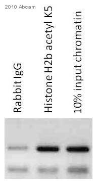 ChIP - Histone H2B (acetyl K5) antibody [EP857Y] - ChIP Grade (ab40886)